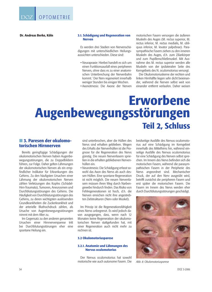 Erworbene Augenbewegungsstörungen