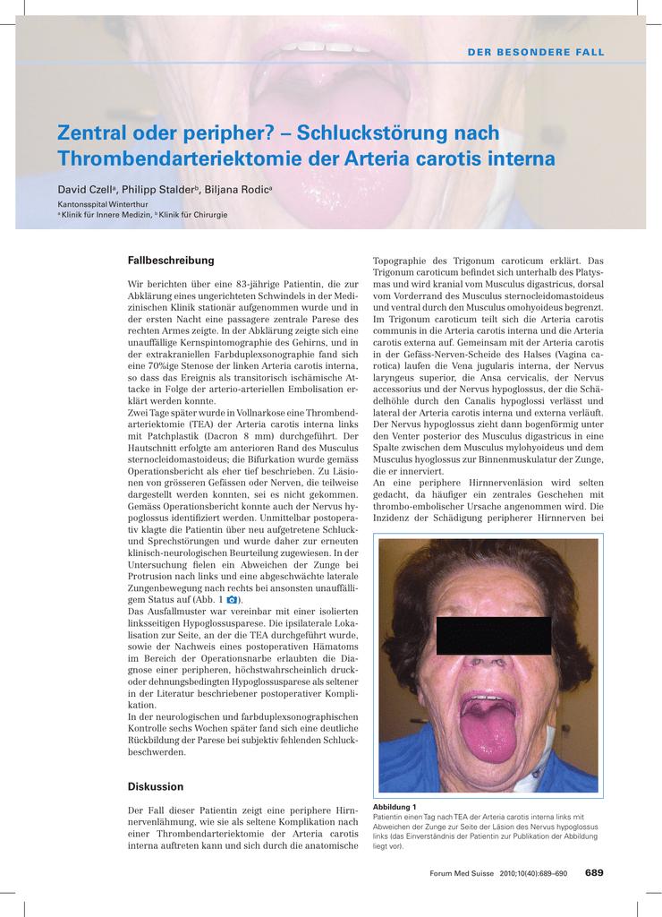 Fantastisch Linker Knöchel Anatomie Galerie - Menschliche Anatomie ...