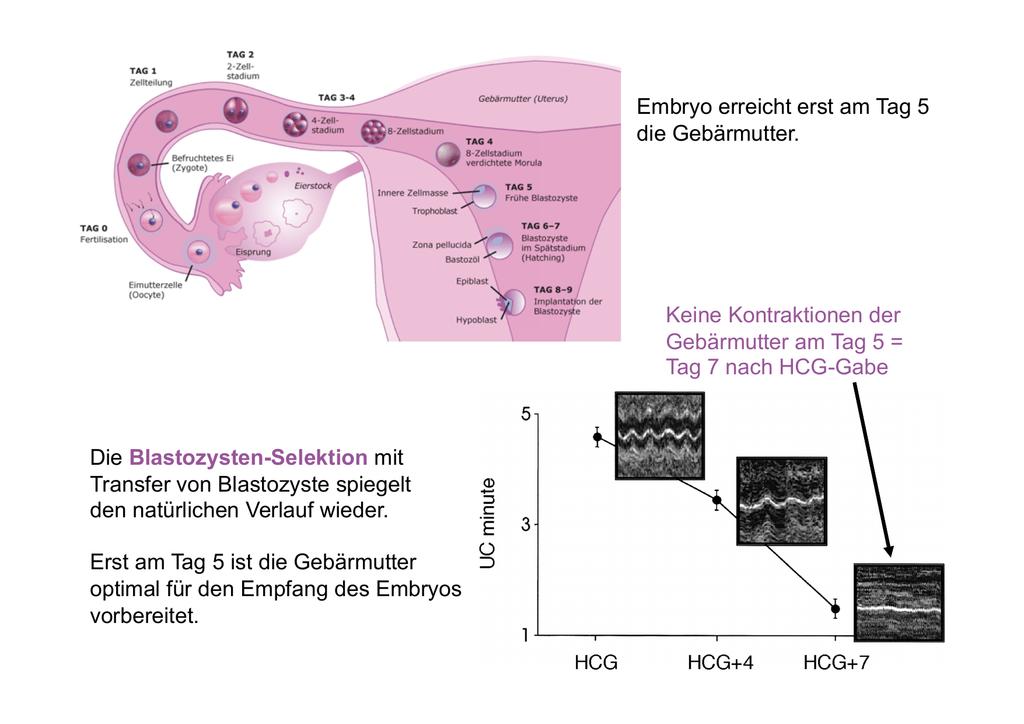 Embryo erreicht erst am Tag 5 die Gebärmutter. Die Blastozysten