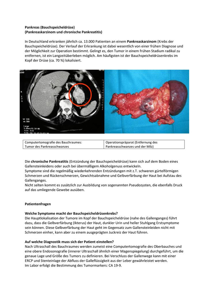 Pankreas Bauchspeicheldrüse Pankreaskarzinom Und Chronische