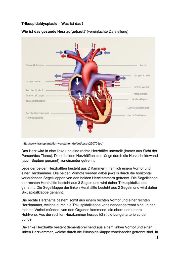 Trikuspidaldysplasie – Was ist das? Wie ist das gesunde Herz
