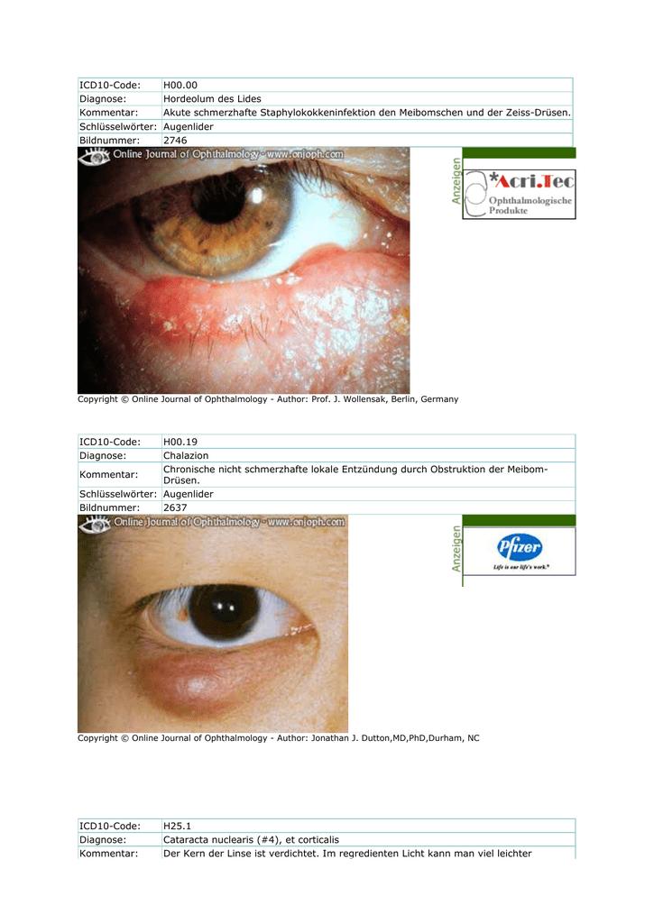 Niedlich Anatomie Des Augenlids Bilder - Anatomie Ideen - finotti.info