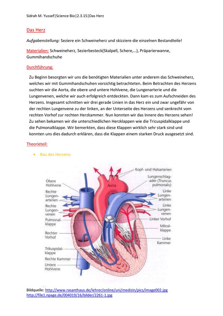 Groß Venen Des Herzens Anatomie Ideen - Menschliche Anatomie Bilder ...