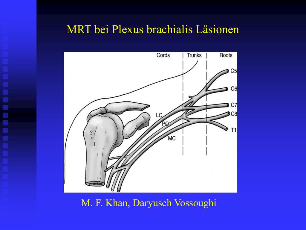 Plexusbrachialis - cox