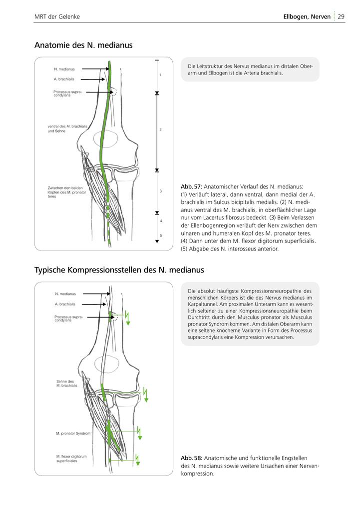 Anatomie des N. medianus Typische Kompressionsstellen des N