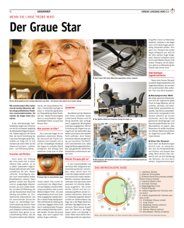 Der Graue Star - Kanarenexpress