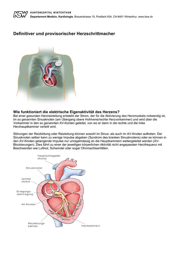 Beste Epitrochlear Knoten Fotos - Anatomie Ideen - finotti.info