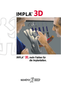 impla 3d - Dentalblog