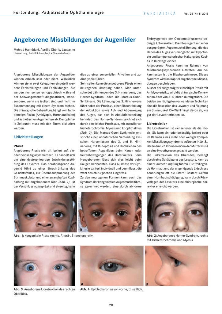 Atemberaubend Augenlid Anatomie Und Physiologie Bilder - Anatomie ...