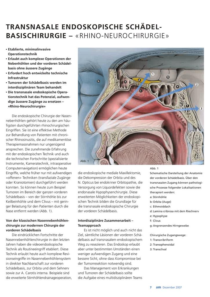 Großzügig Schädelbasis Anatomie Ct Bilder - Menschliche Anatomie ...