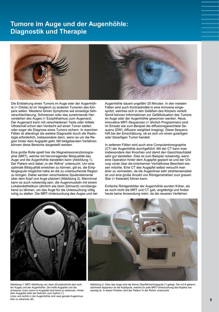 Tumore im Auge und der Augenhöhle: Diagnostik und