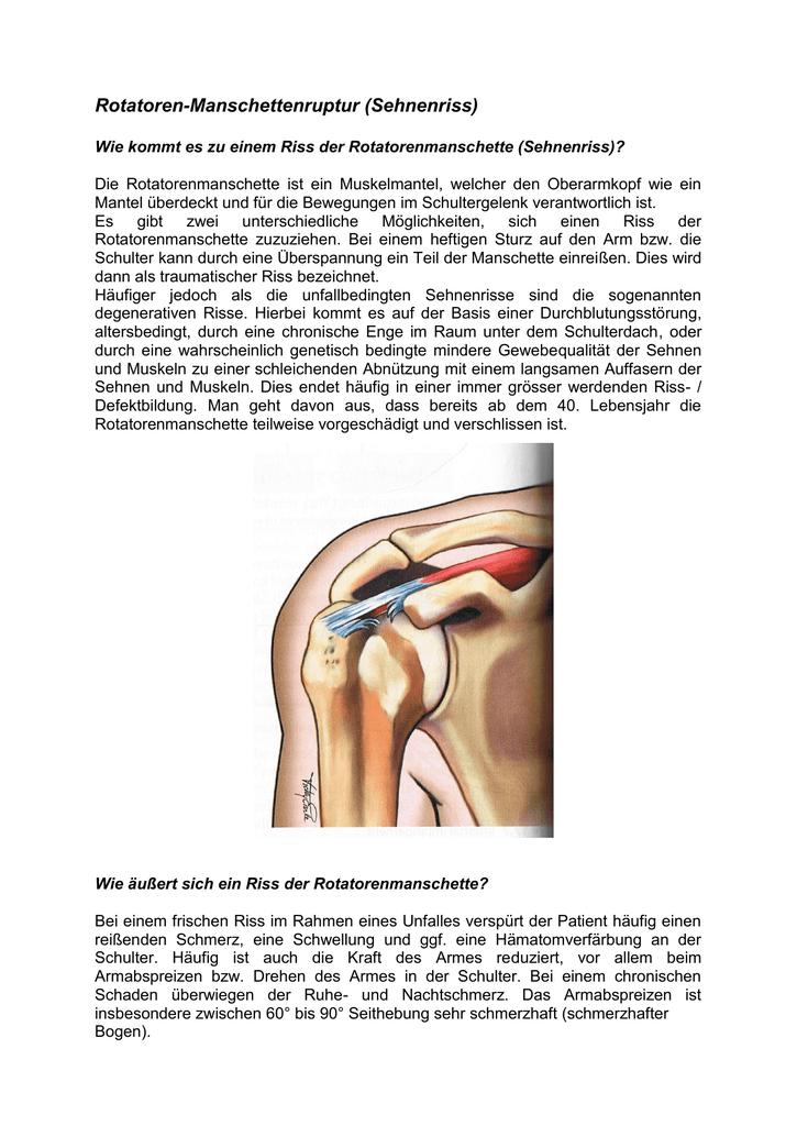Fantastisch Rotatorenmanschette Anatomie Bilder Ideen - Anatomie ...