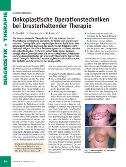 Onkoplastische Operationstechniken bei brusterhaltender Therapie