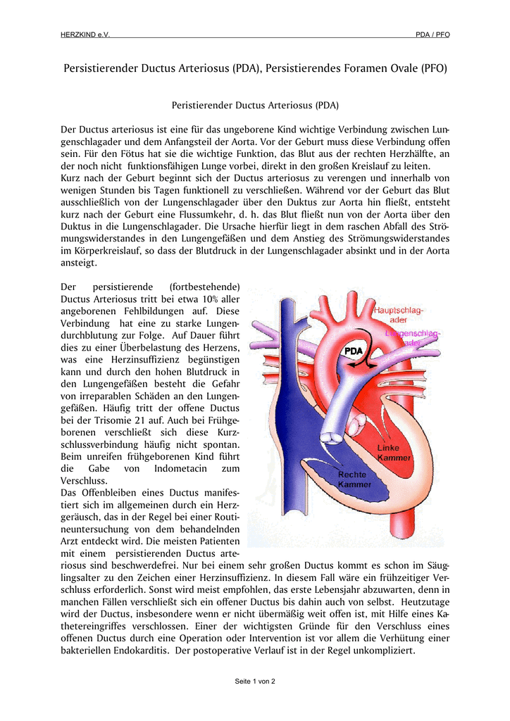 persistierender ductus arteriosus