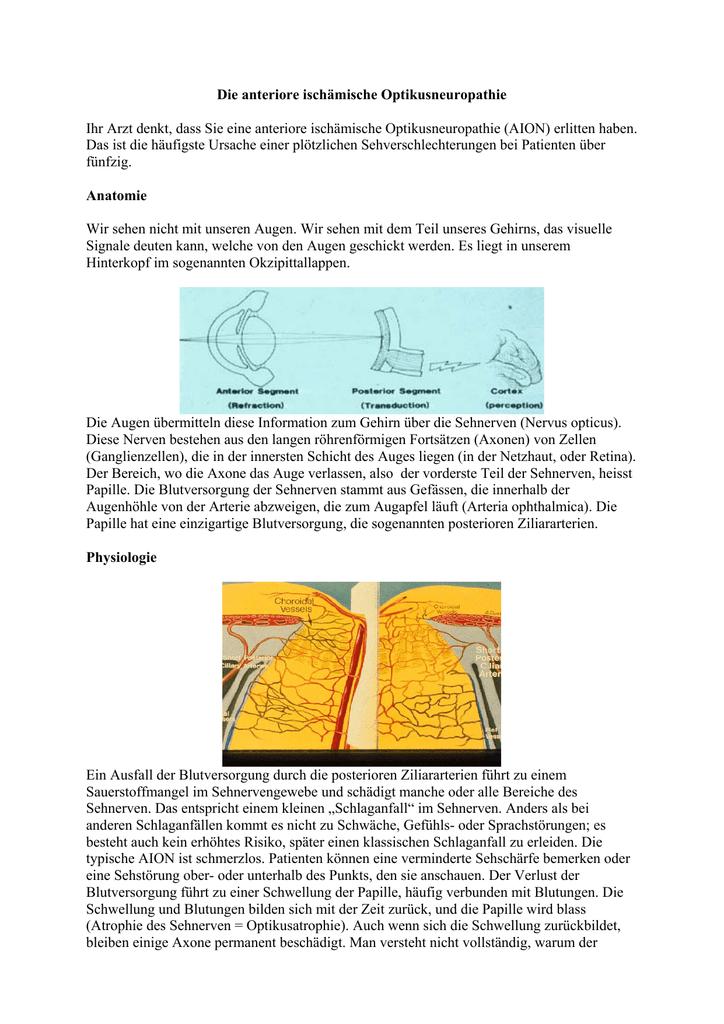 Anteriore ischmische Optikusneuropathie