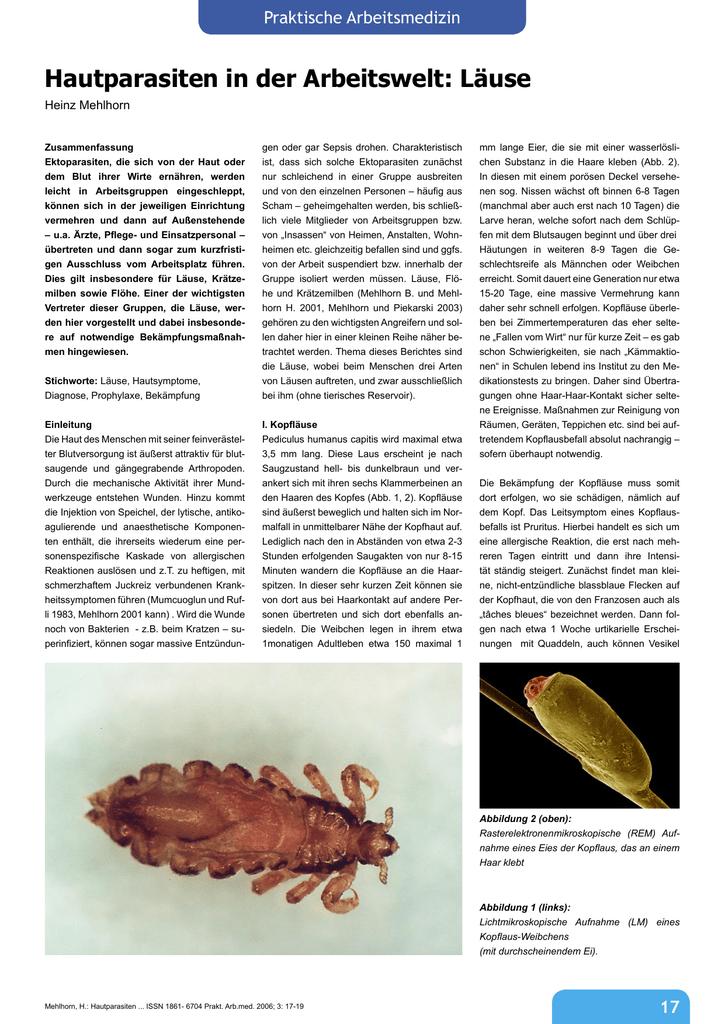 Hautparasiten In Der Arbeitswelt Läuse