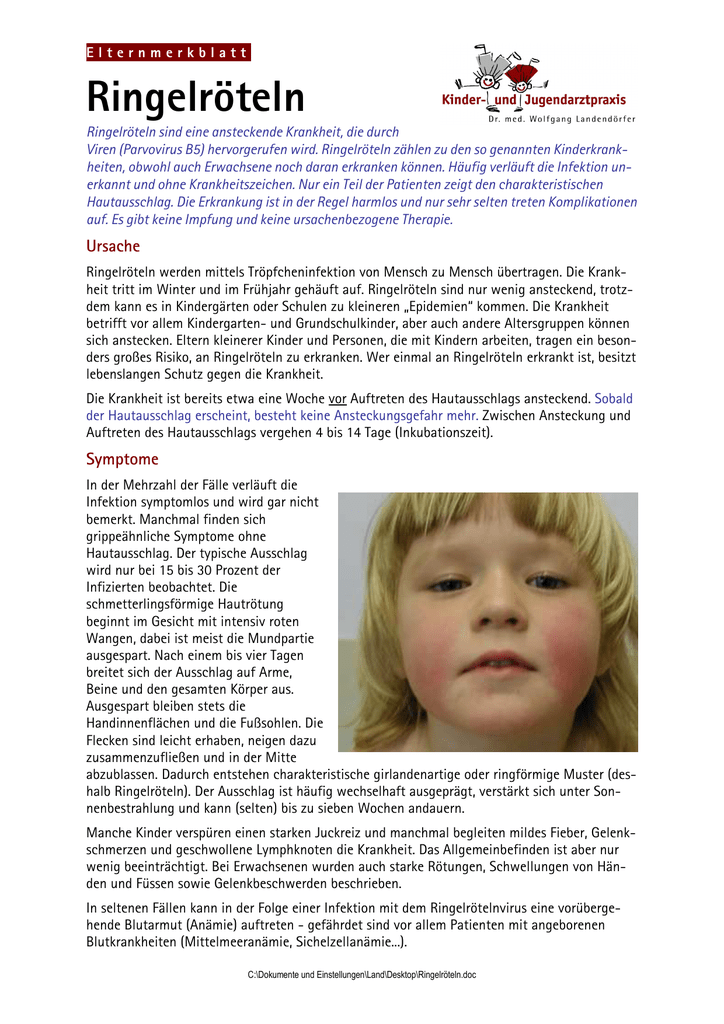 Impfung ringelröteln