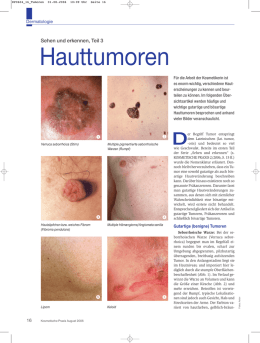 Hauttumoren - Beauty Forum