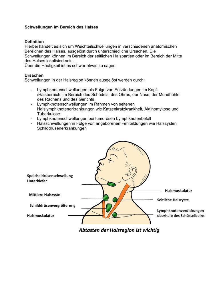 Schwellungen im Bereich des Halses