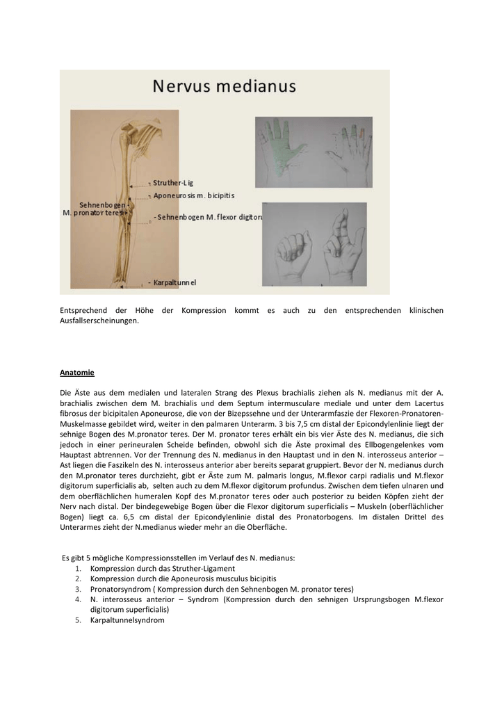 Wunderbar Karpaltunnelsyndrom Anatomie Zeitgenössisch - Anatomie Von ...