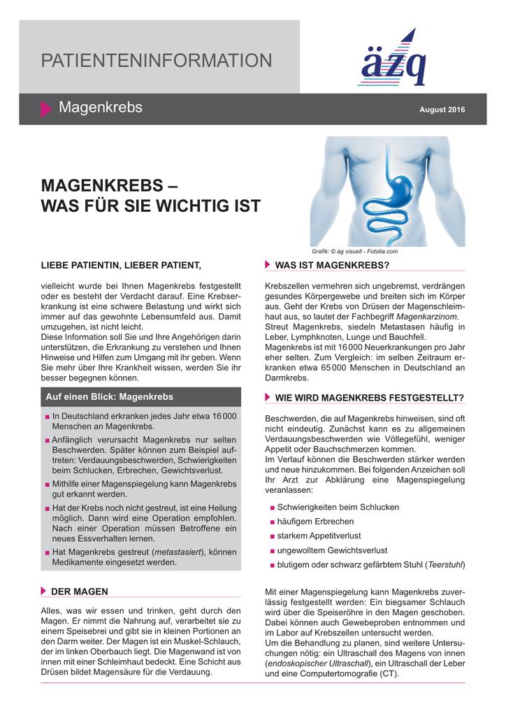 Ungewöhnlich Lymphknoten Karte Des Körpers Bilder - Anatomie Ideen ...