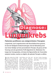 Diagnose - Lungenkrebs Testen