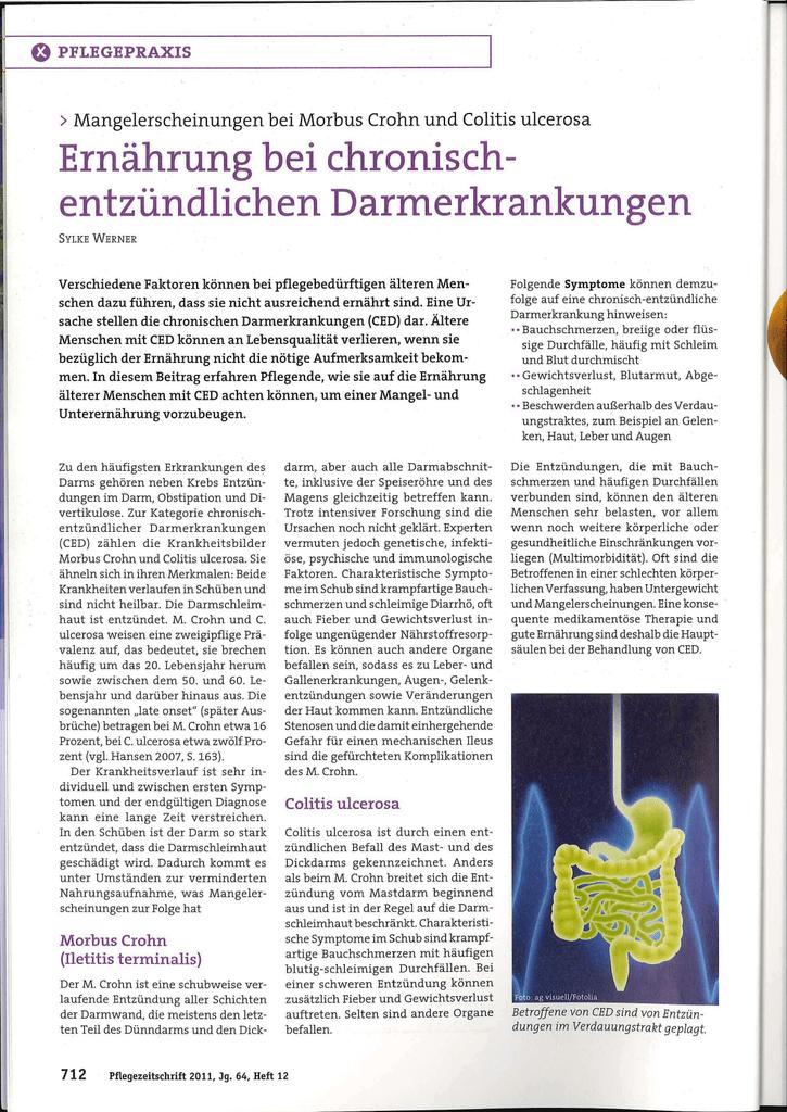 Colitis ulcerosa Diät Ausbruch