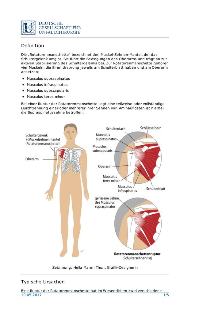 Fein Skapulier Muskelanatomie Bilder - Anatomie Ideen - finotti.info