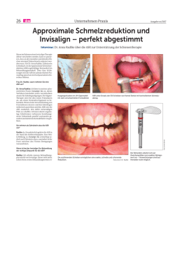 Approximale Schmelzreduktion und Invisalign
