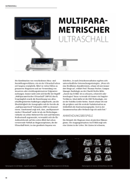 MULTIPARA- METRISCHER ULTRASCHALL