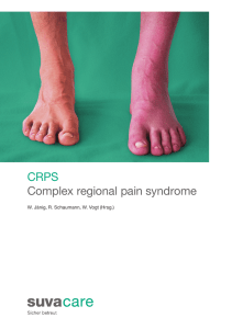 CRPS Complex regional pain syndrome