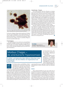 Morbus Chagas - biomed