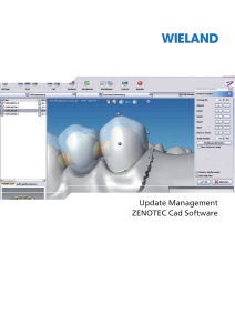 Update Management ZENOTEC Cad Software